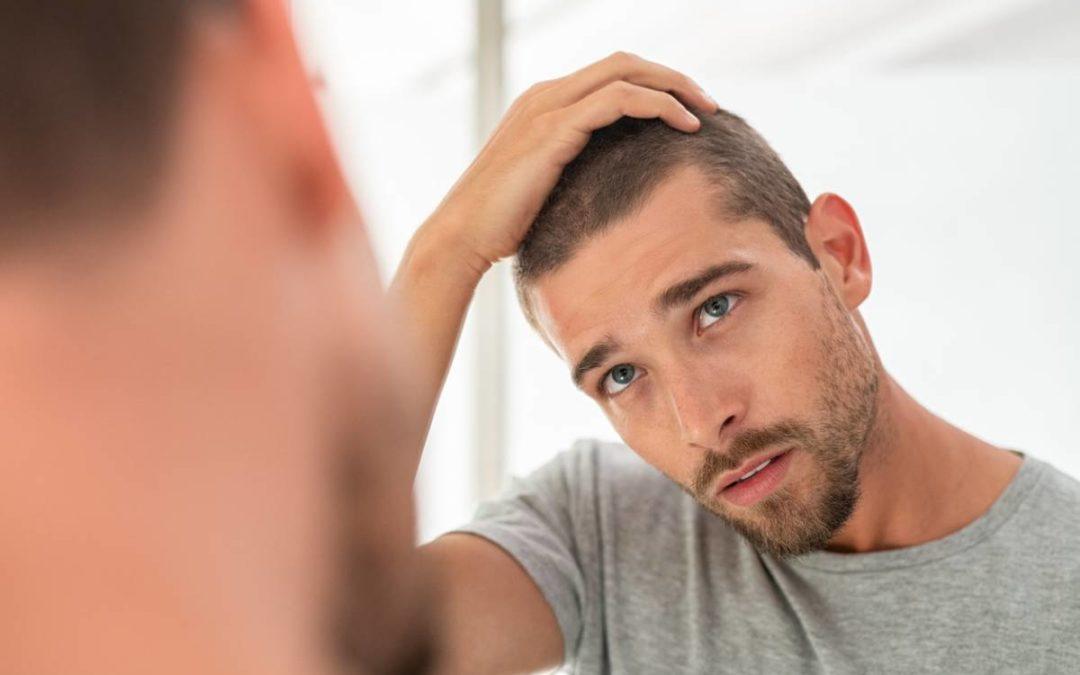 À quel âge avoir un greffe de cheveux?